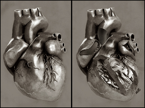 Einthoven's Heart + Dissection