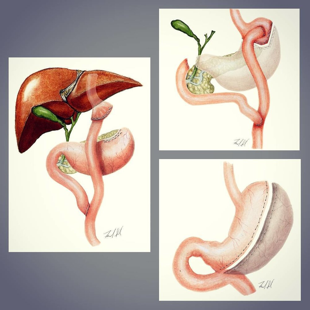 Variations within bariatric surgical procedures.