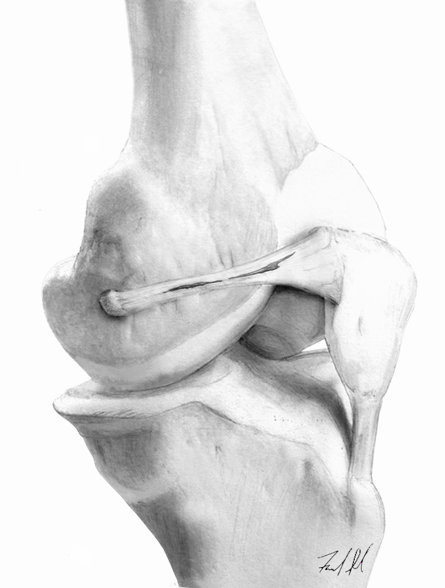 Medial patellofemoral ligament tear.