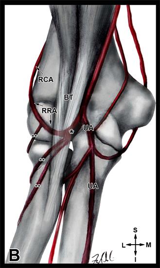 Variant Radial Artery