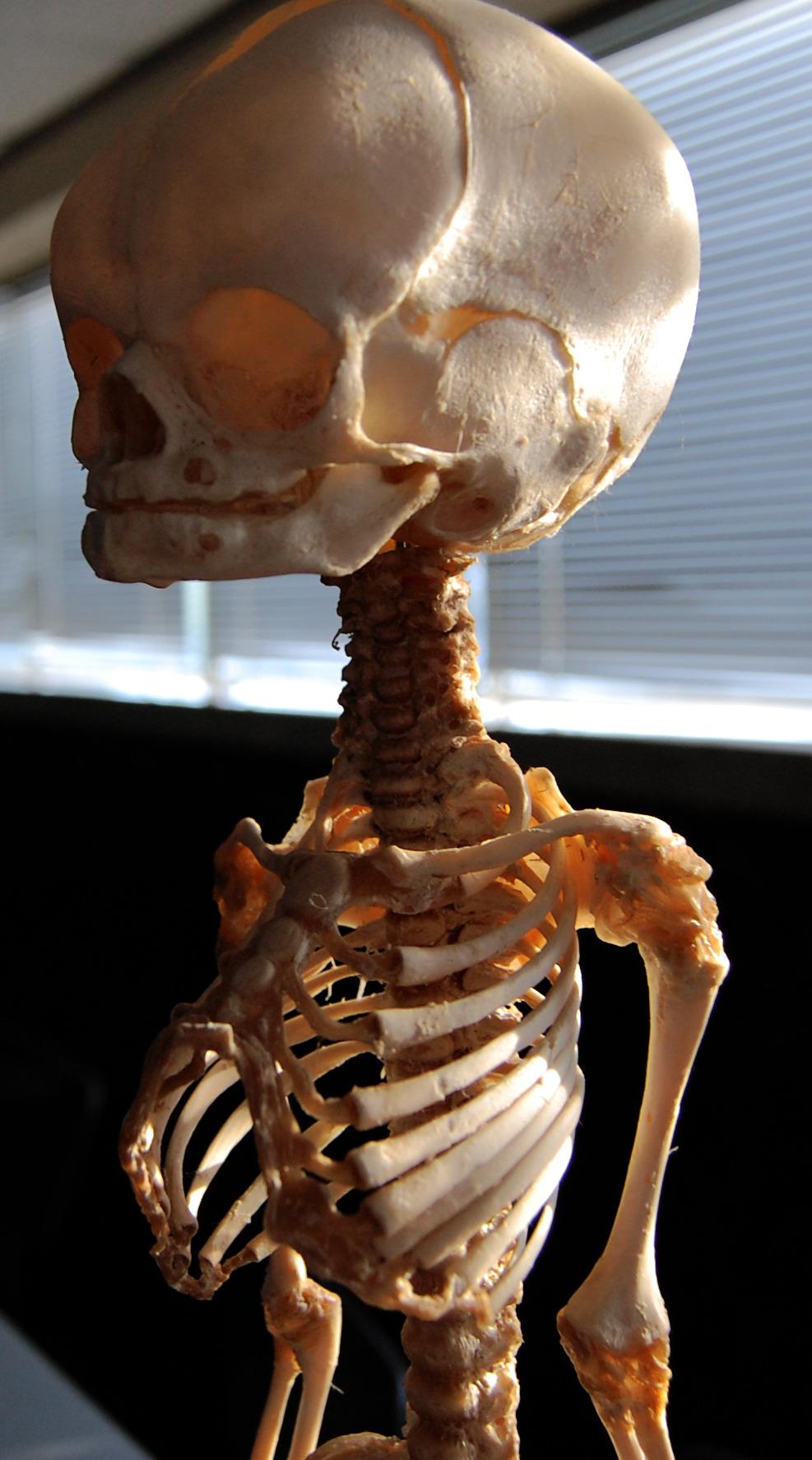 Child's Skeletal System