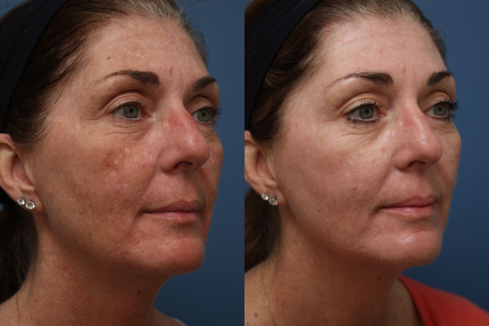 sun-damage-before-and-after-peel1.jpg