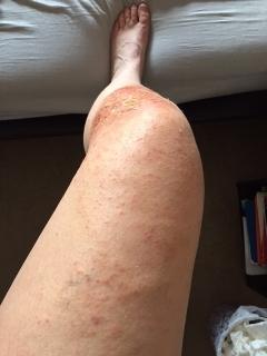 leg skin rash.JPG