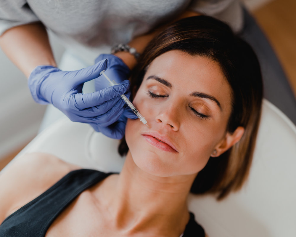 botox upper lip.jpg