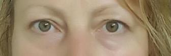 biostimulationeyes.jpg