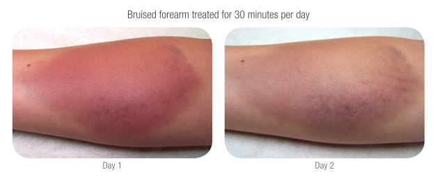 Before and after a 30 min session on arm for bruising. Within 30 min you are able to get increased circulation for rapid healing. LED travels deep into tissues and muscles of the body to repair damage. Using LED Body Therapy for targeted repair will quickly reduce pain on sight.