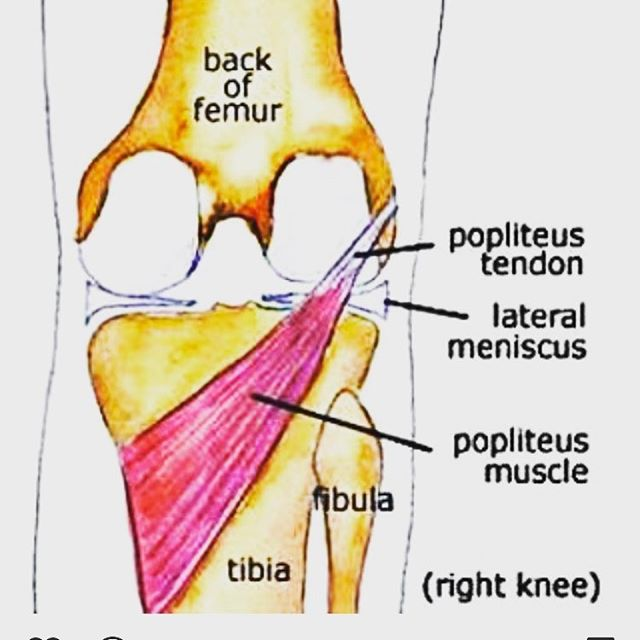 A muscle that we routinely need to work on in the office is the popliteus. This small, but important muscle controls knee extension and plays a stabilizing role. It is stressed when stepping down from a box, stair or off of a curb.  Runners also routinely strain this muscle! If you are suffering with pain during these activities, it's time we check out the function of your popliteus!  Primal Performance Spine and Sport  2117 49 st N St Petersburg FL 33710 Www.spineandsport.clinic  #mobilitydoc #stpetersburg #nospineleftbehind #primalperformancespineandsport #mobwod #romwod #runner #runningman #cupping #softtissue