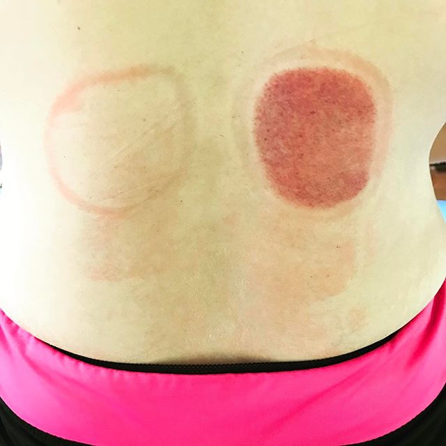 Low back, two cups placed with the same amount of pressure for same amount of time. Patient was complaining of pain in one side of her back, can you guess which one has damaged tissue?  Might be time to have your soft tissue evaluated! @primalperformancedoc  2117 49 st N St Petersburg FL 33710  #softtissue #cupping #fascia #wod #crossfit #nospineleftbehind #myofascial #myofascialdecompression  Www.spineandsport.clinic