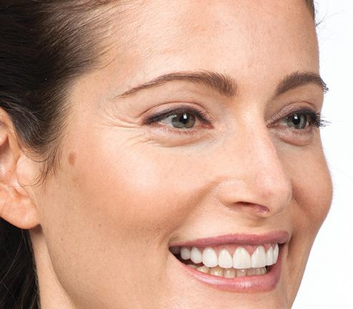 Botox 8.jpg