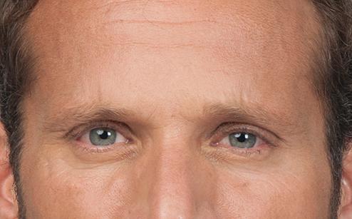 Botox 4.jpg