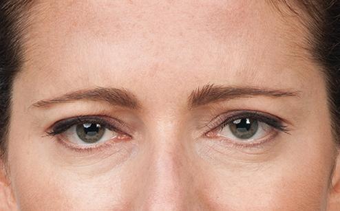 Botox 5.jpg