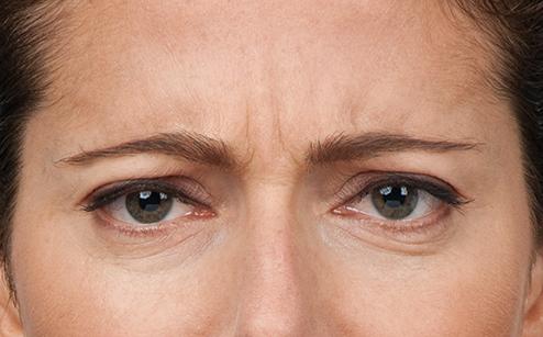 Botox 6.jpg