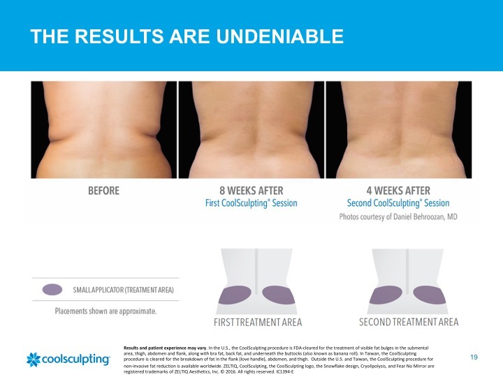 Coolsculpting 2.jpg