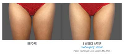 CoolSculpting 4.jpg