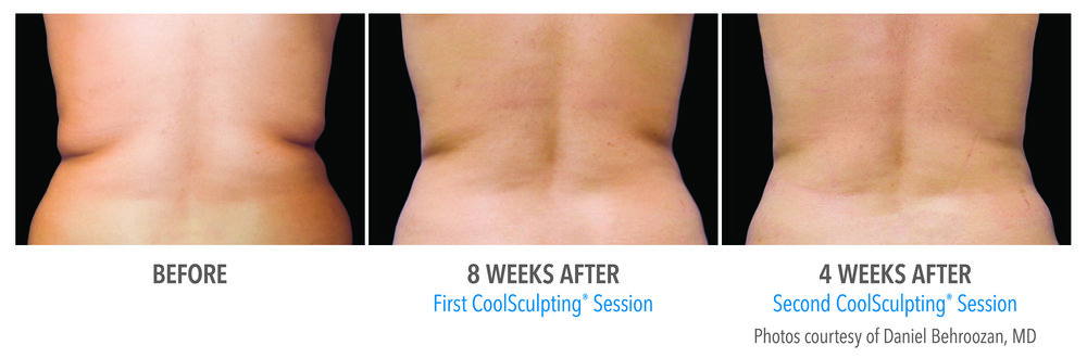 coolsculpting flanks.jpg