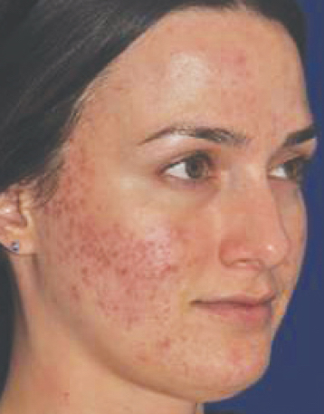 BA-acne copy 2 BEFORE.jpg