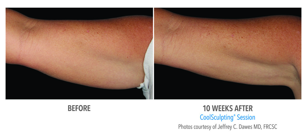 Integrated Dermatology Announces Coolsculpting On Arms