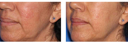Microneedling before & after.