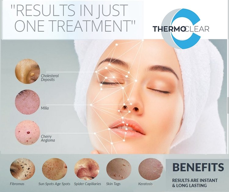 ThermoClear utilizes radio frequency to treat skin imperfections. There are many advantages of using the ThermoClear Skin Treatment System. The most important one is that it ONLY treats the top layer of the skin (epidermis), leaving the lower layers (dermis) of the skin unaffected.      15 Mins        $125