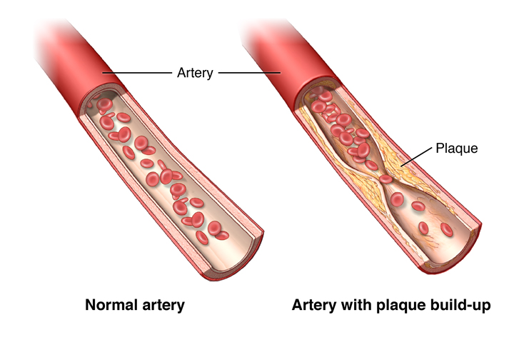 Front view of a healthy blood vessel and an unhealthy blood vessel with plaque buildup