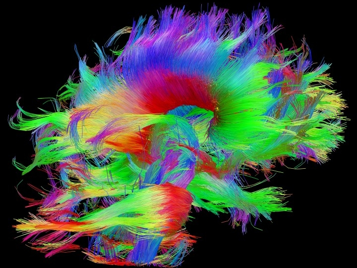 White matter fiber architecture of the brain. Measured from diffusion spectral imaging (DSI). The fibers are color-coded by direction: red = left-right, green = anterior-posterior, blue = up-down. www.humanconnectomeproject.org