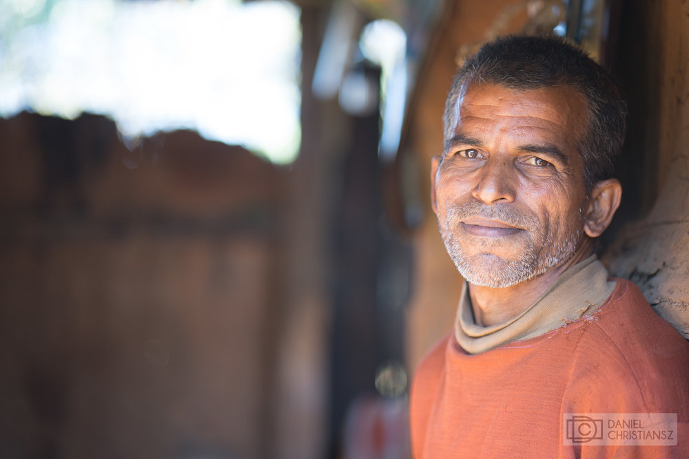 Man from Nepal affected by Leprosy