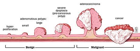 Aparición y progresión de la formación de pólipos en las paredes del intestino grueso. Foto: Pinterest