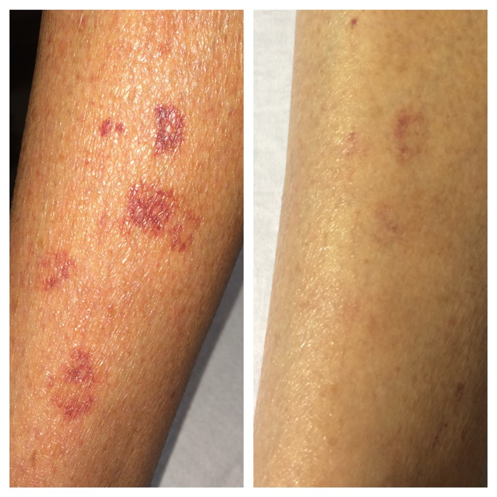 One exercise session was used in treatment of this chronic issue. Before (L) and after (R), just days apart.