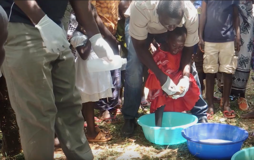 In 2015, we witnessed this young girl having her feet treated for jigger infection. Her feet were sterilised in bleach before the man behind her used a razor blade to scour out the flea. Sole Support now (2017) works with a local healthcare centre to offer safe treatment and preventative guidance.