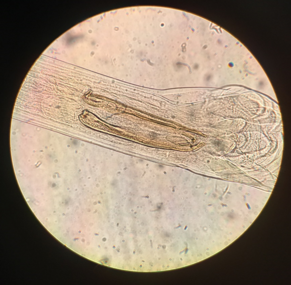 Figure 1:    Ostertagia ostertagi adult male spicules (400x magnification)