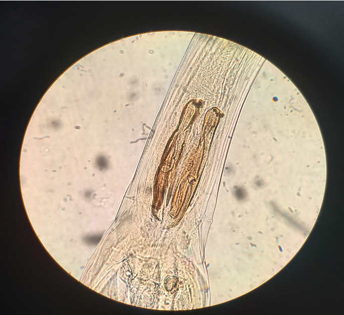 Figure 2:    Ostertagia lyrata adult male spicules (400x magnification)