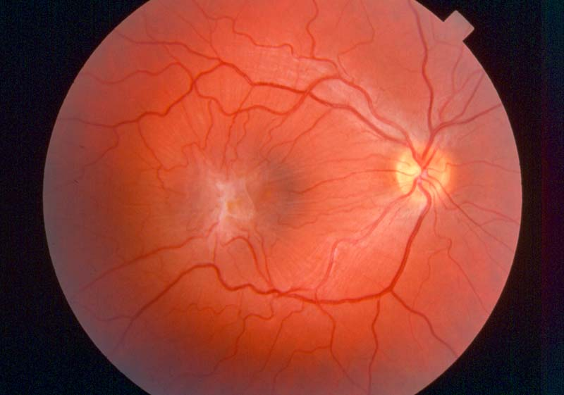 "This image shows a retina with a fine ""epiretinal membrane"" growing on the surface. As a result, the normal architecture of the retina is distorted, and the resultant vision is likely to be reduced and distorted."