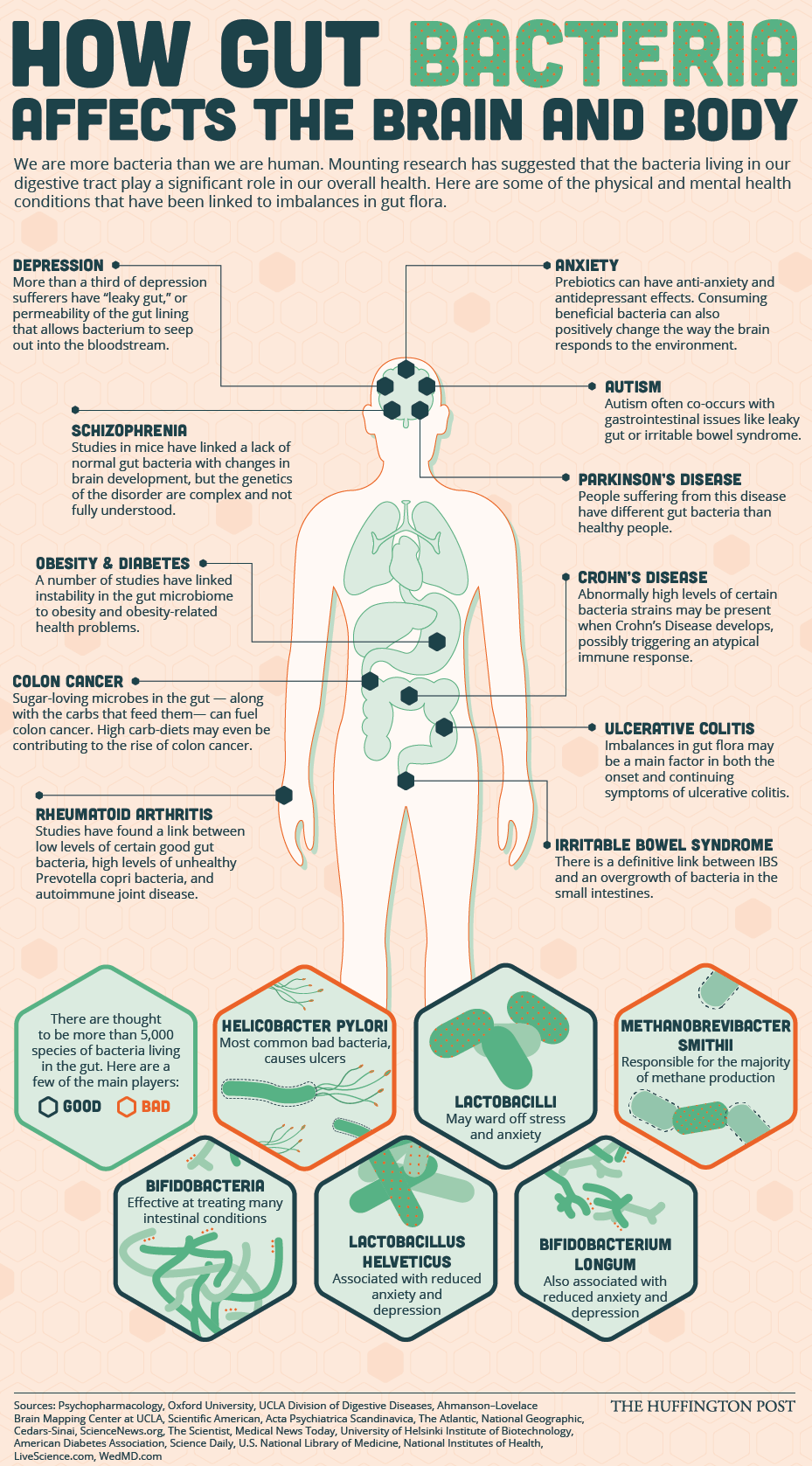 Infographic by Jan Diehm for The Huffington Post.