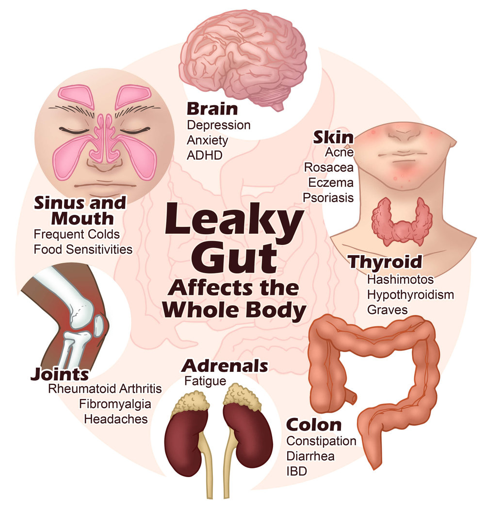 3.symptoms of leaky gut.jpg