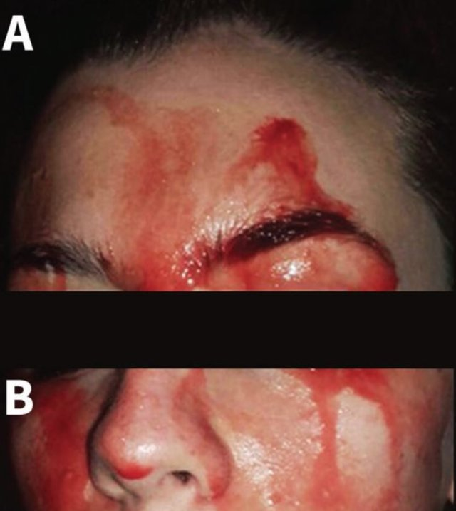 Bleeding discharge from the forehead (A) and lower face (B) of a 21-year-old woman. |Canadian Medical Association Journal