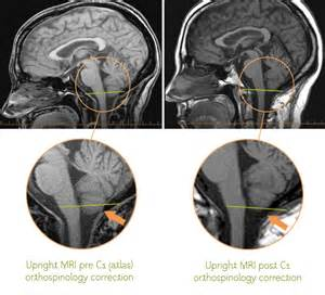 MRI showing improvement after an upper cervical chiropractic adjustment