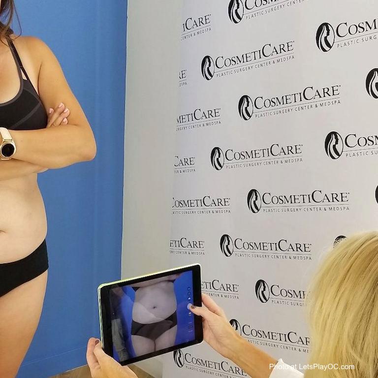 Cosmeticare Abdominoplasty Pre Op Photos LetsPlayOC.jpg