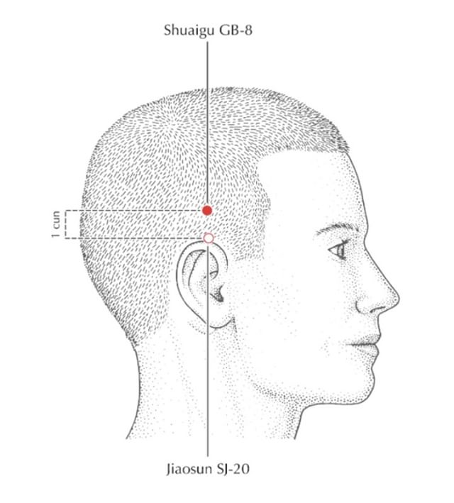 Acupuncture + Headaches ⠀⠀⠀⠀⠀⠀⠀⠀⠀ ⠀⠀⠀⠀⠀⠀⠀⠀⠀ This is just one of maaaany (hundreds) of points we can choose from to treat your migraines and/or headaches.  Everyone's migraines are felt and experienced in a different way which is why treatment looks slightly different from person to person. ⠀⠀⠀⠀⠀⠀⠀⠀⠀ ⠀⠀⠀⠀⠀⠀⠀⠀⠀ Twenty-eight million Americans suffer from migraines. Of these people, 4.5 million have more than one attack per month. A quarter of the female population is affected and about eight in every hundred men.⠀⠀⠀⠀⠀⠀⠀⠀⠀ ⠀⠀⠀⠀⠀⠀⠀⠀⠀ ...Needle-less to say, we treat a ton of migraine headaches each week.