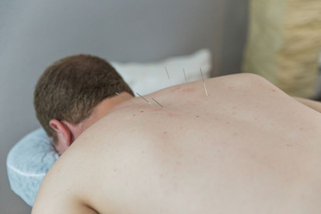 "Acupuncture + Back Pain⠀⠀⠀⠀⠀⠀⠀⠀⠀ ⠀⠀⠀⠀⠀⠀⠀⠀⠀ ⠀⠀⠀⠀⠀⠀⠀⠀⠀ ""I feel much better after each session. Heather is a wonderful acupuncturist who works with you to improve your health condition. She asks a lot of questions which in turn gives her a better understanding of your needs. I am pleased with Glenside Community Acupuncture and will continue treatment."" L.D."