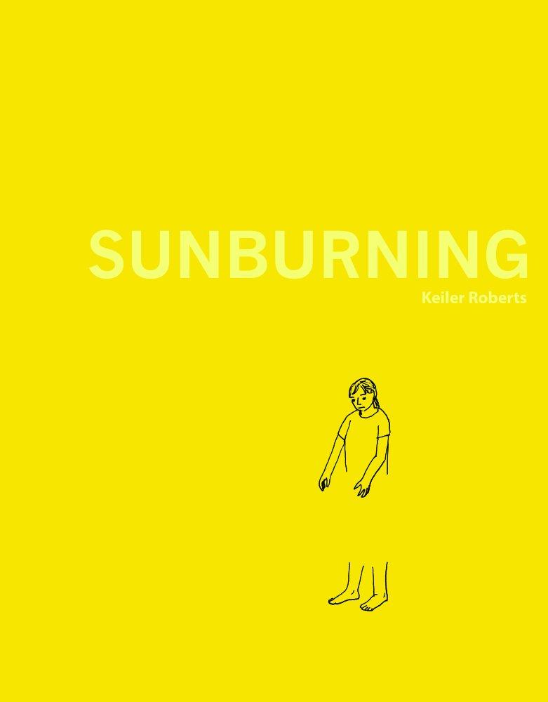 Sunburning.jpg