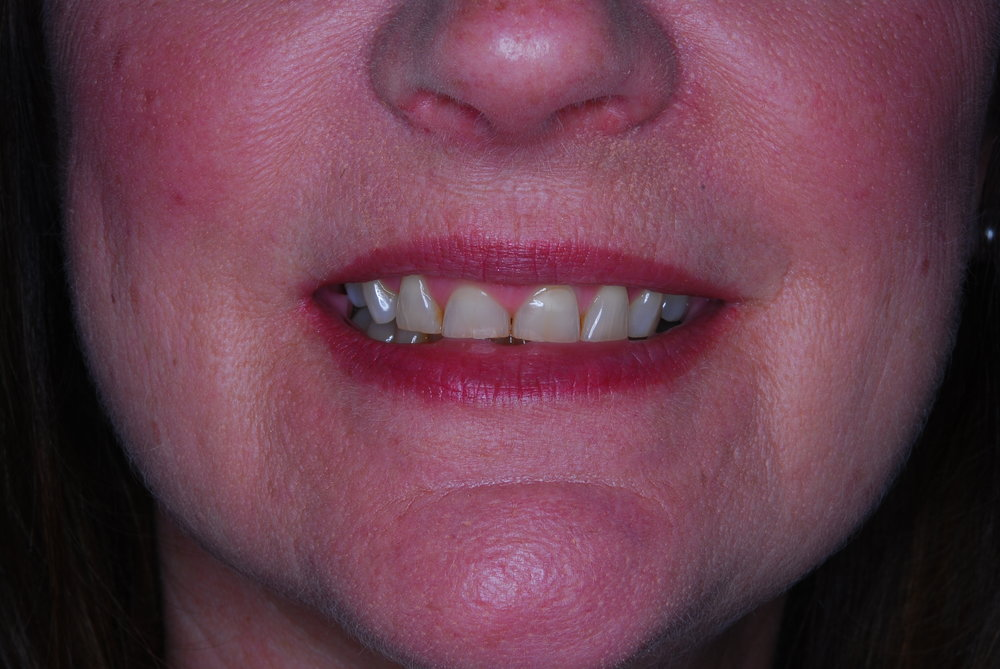 worn, stained teeth before treatment