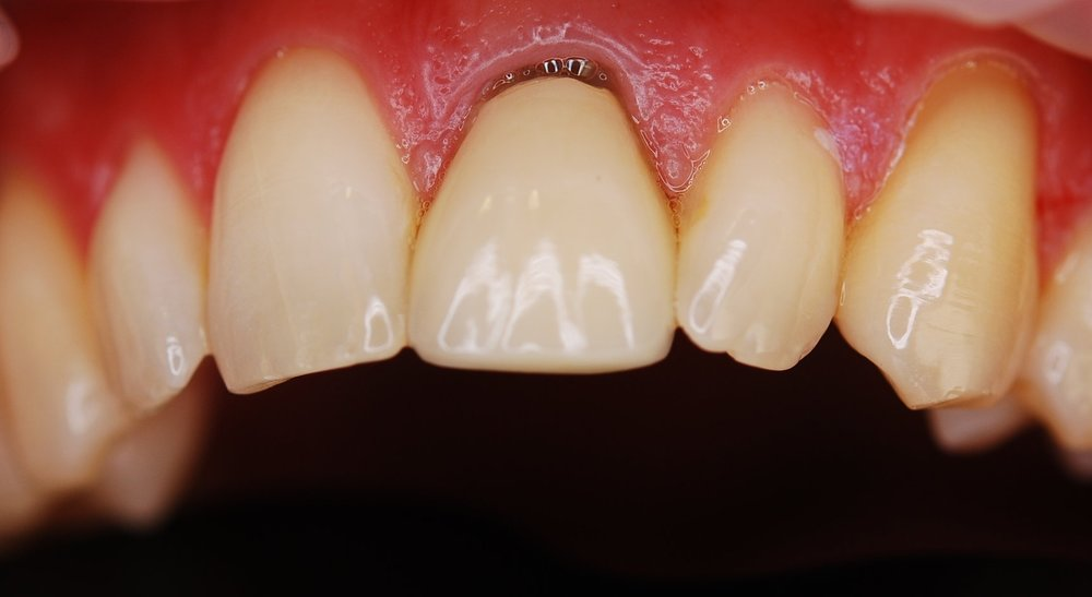 Patient hated the ugly crown on the front tooth