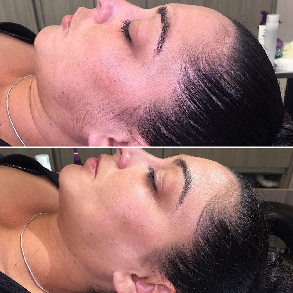 Choose Dermaplaning: - Choose Dermaplaning:- If you are experiencing dry patches and small surface wrinkles- To remove fine facial hair- To help even skin texture and tone- Lighten hyperpigmentation and dark spots over time- Help your skin care products absorb and penetrate deeper into the skin