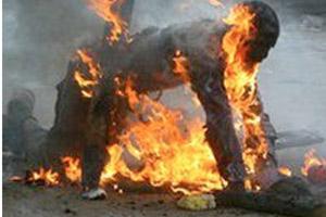 Human skin burns at 1400 degrees