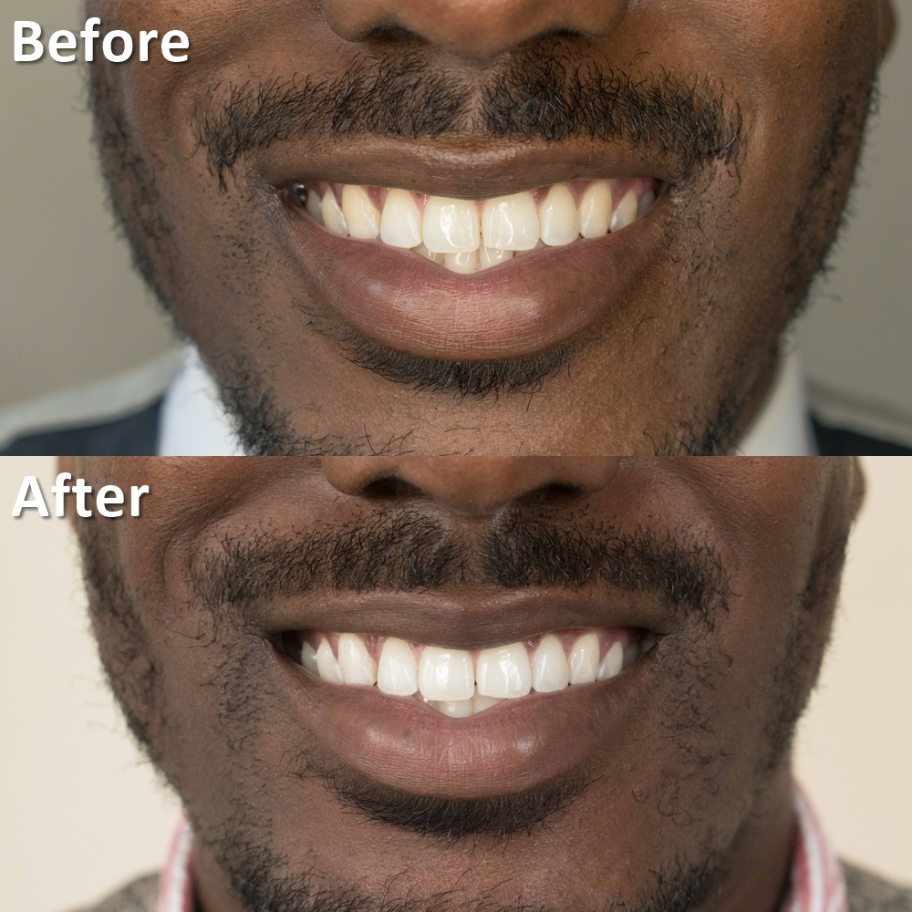 smile brilliant coupon before and after review