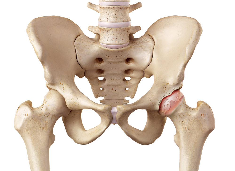 Healthy Hip, left  / Damaged Hip, right
