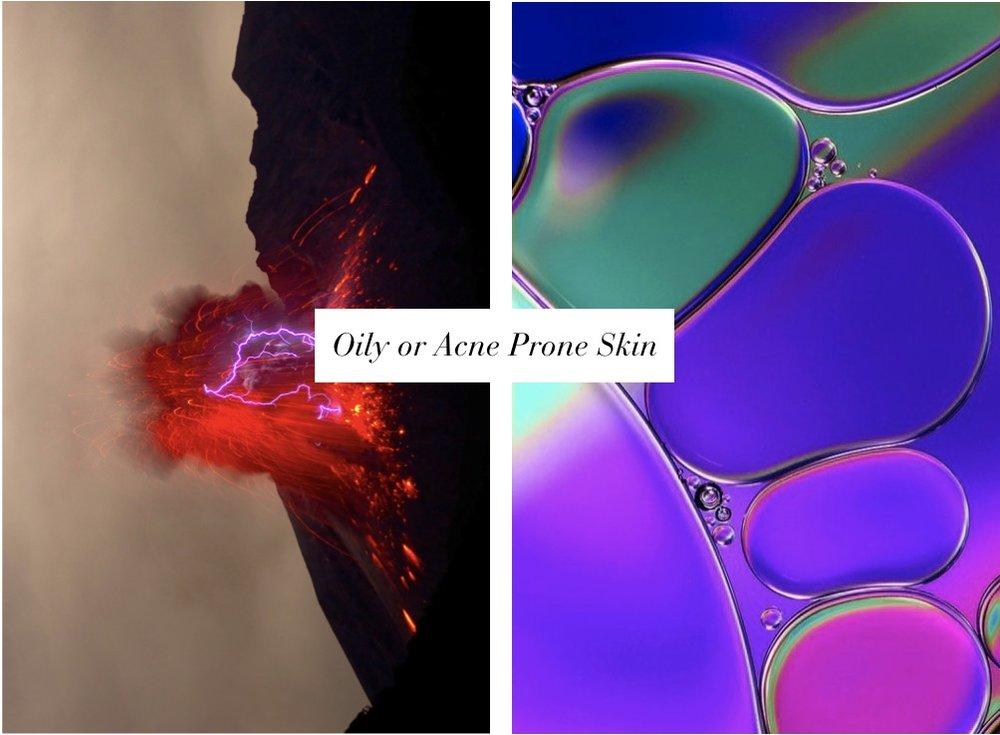 face-oils-acne-prone-key-kudisco.jpg