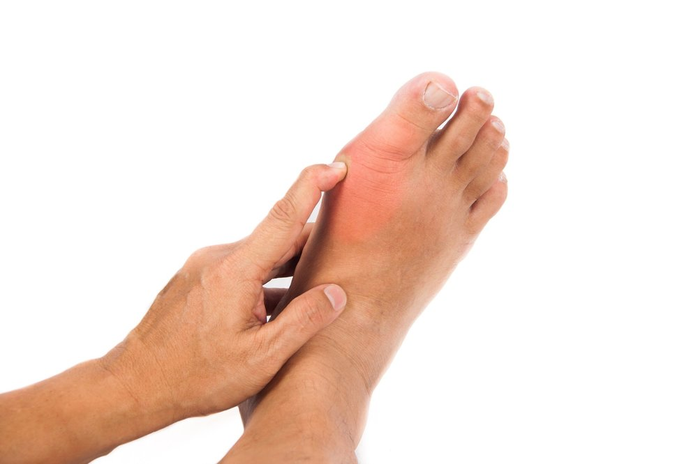5 - The most common area for a gout attack is in the big-toe joint. Gout in women is generally associated with hydrochlorothiazide (HCTZ), a drug for high blood pressure.