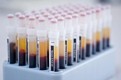 serum-tissue-samples