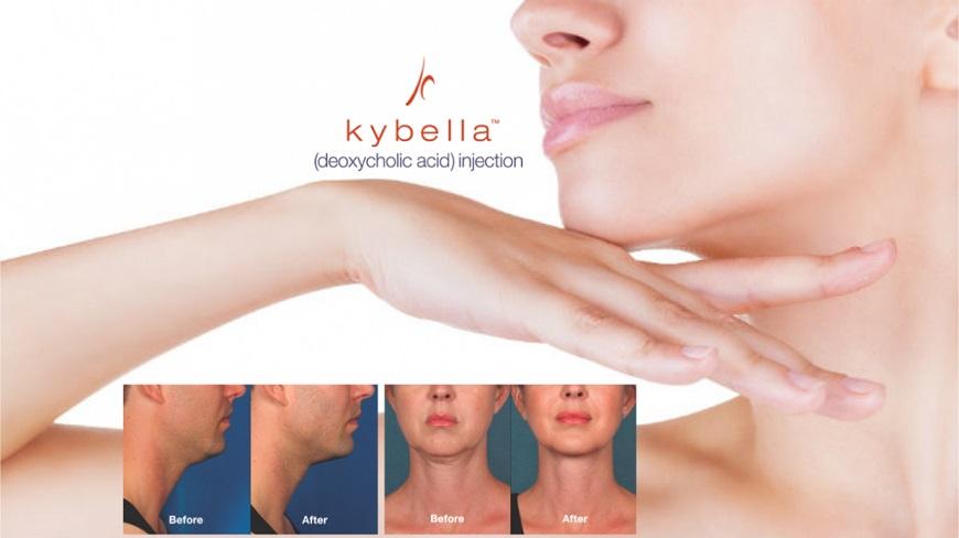 Kybella-Slider-e1457127873913.jpg